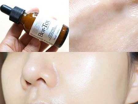 Hiệu quả sử dụng Medi-Peel Bor-Tox Peptide Ampoule